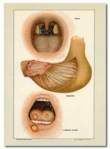 Difteri, magkräfta och munsår