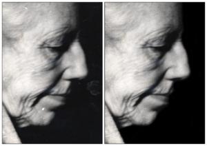 Foto före och efter med mor Anna